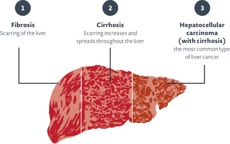 Possible progression of liver damage